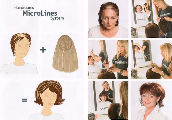 MicroLines