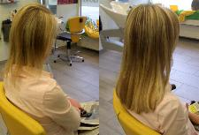 Vorher Nachher Bilder Haarverdichtung